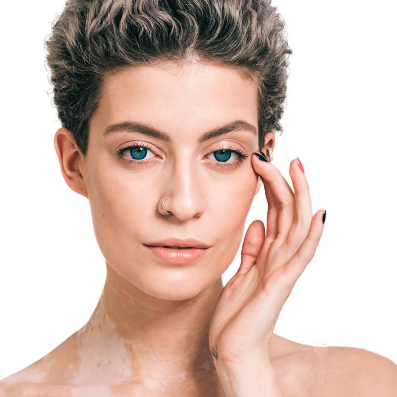 Tratamiento Despigmentante Facial Me Line 2 sesiones